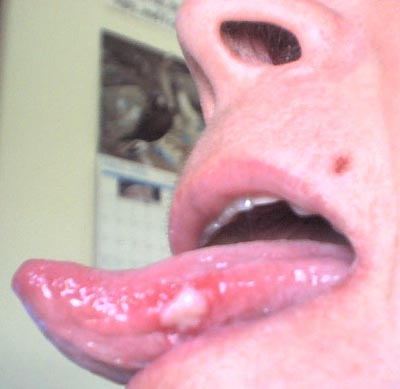 cold sores in the nose that persist